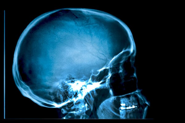 March Designated as National Brain Injury Month