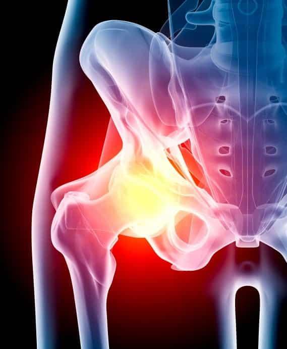 DePuy Hip Implants Stock Photo